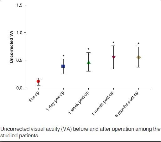 Think, anisometropic amblyopic laser surgery adult share