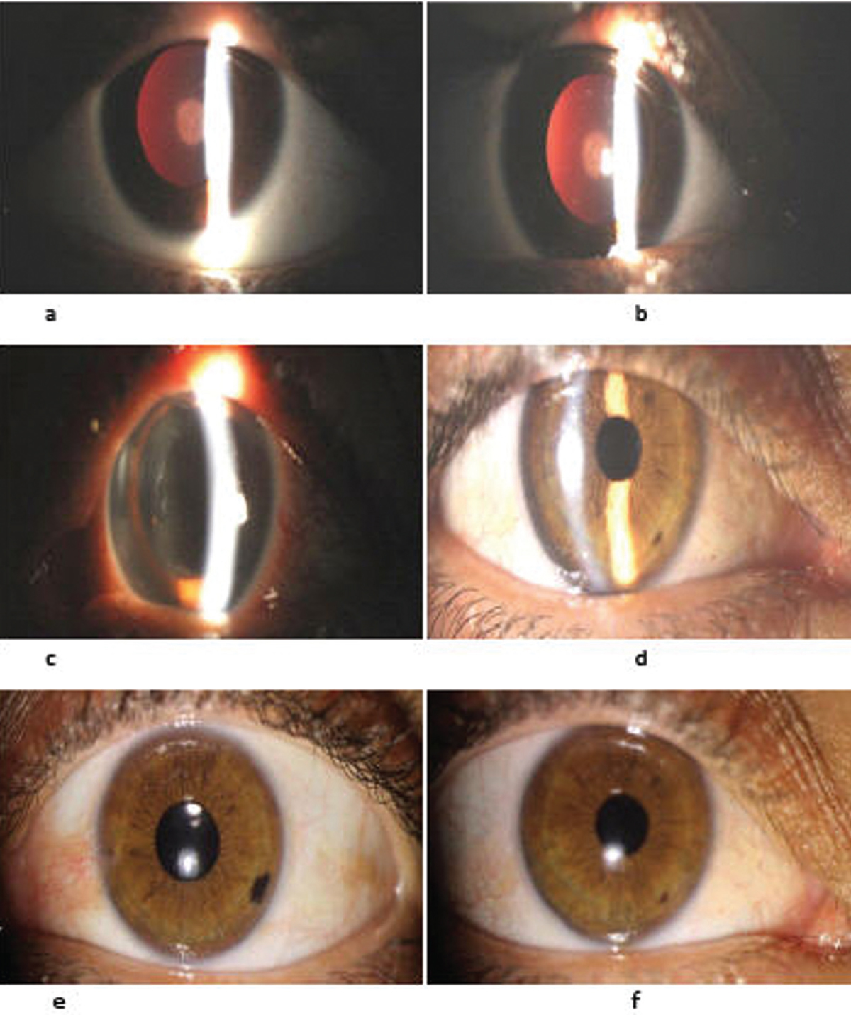 Evaluation Of Intraocular Inflammation After Intracameral Injection