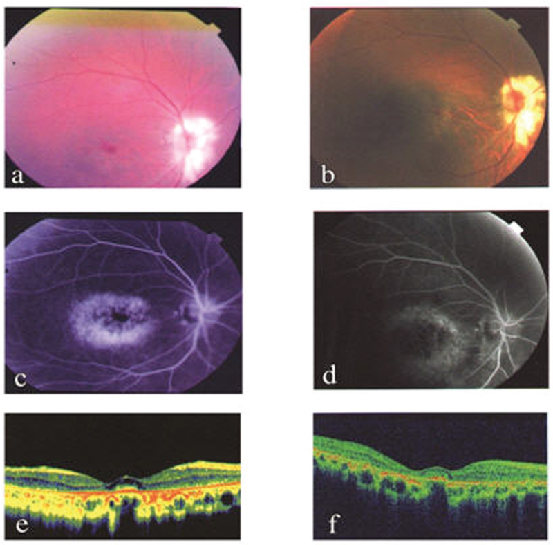 Hydroxychloroquine retinopathy in a cohort of patients from